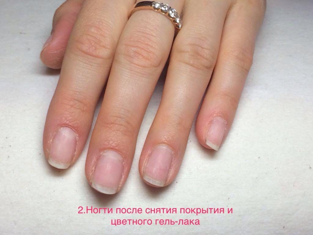 каждый ногти после гель лака фото естественность